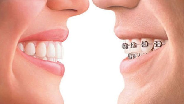 Smile Solutions 101: Braces or Invisalign? | Friendly Dental